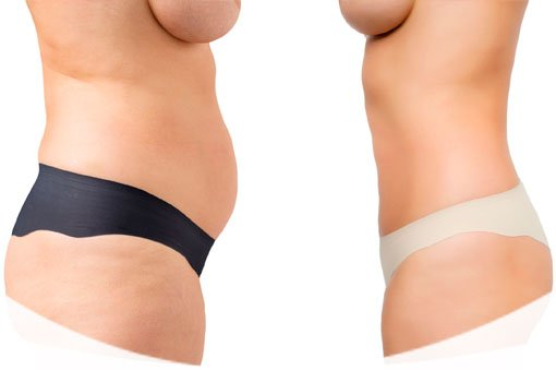 Abdominoplastia en Madrid